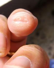 impronta corda sul dito anulare